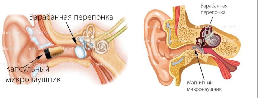 насколько глубоко микронаушник в ухе