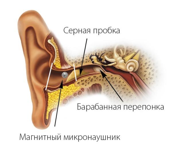 не слышно микронаушник магнит из-за ушной серы